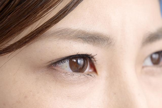 眼瞼内反症(さかさまつ毛)とは