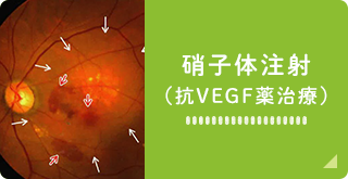 硝子体注射 (抗VEGF薬治療)